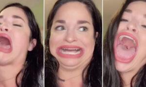 Έγινε διάσημη στο TikTok λόγω του πελώριου στόματός της και βγάζει χιλιάδες δολάρια [βίντεο]